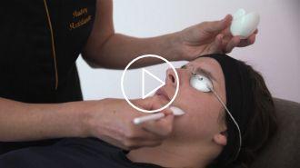 Aperçu vidéo d'un peeling avec le Docteur Vincent Dellière à Rennes